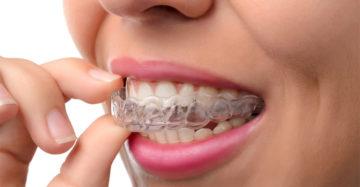 бруксизм стоматология