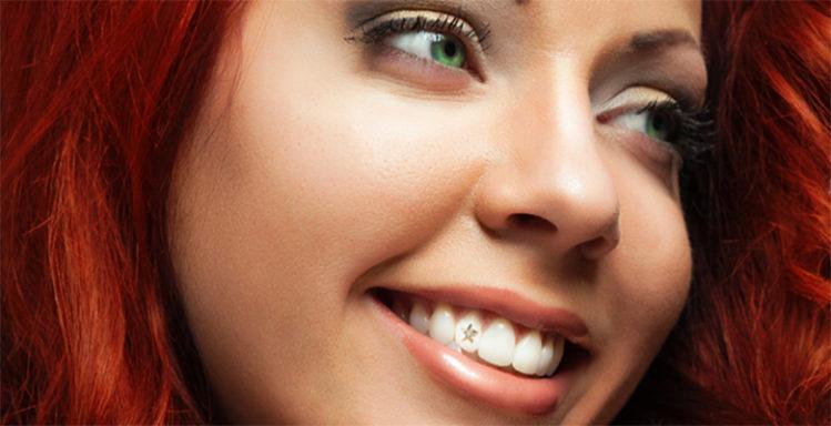 Скайс украшение зуба.